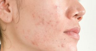 sabun muka untuk kulit berjerawat